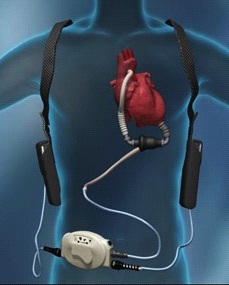 Heart Surgery Procedure 11