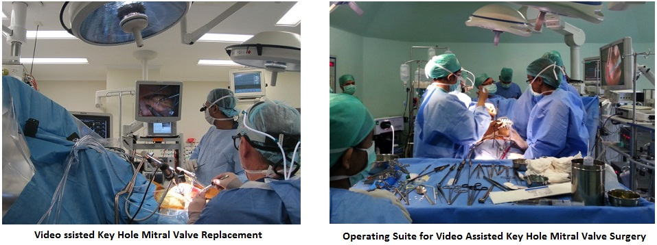 Video Assisted Key Hole Mitral Valve Procedure 1