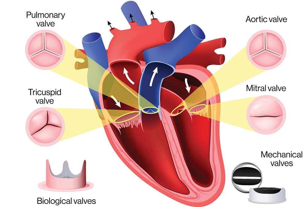 Heart Valve Surgery 1