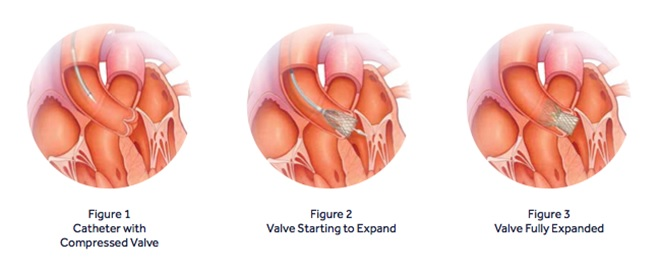 TAVR (Transcatheter Aortic Valve Replacement) 6