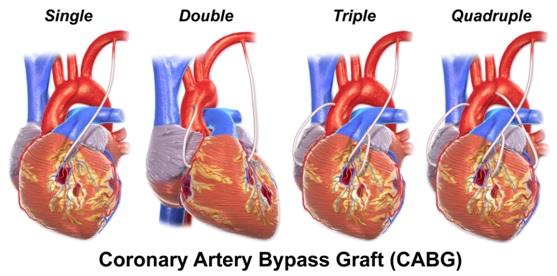 Coronary Artery Bypass Surgery (CABG) 4