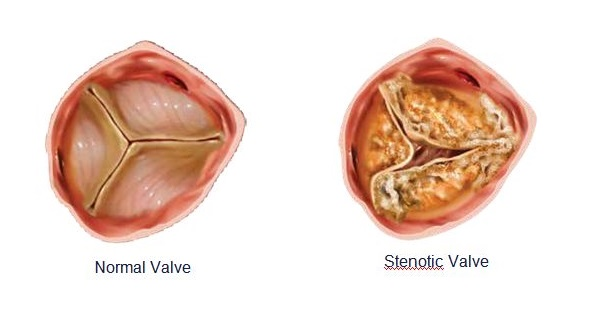 TAVR (Transcatheter Aortic Valve Replacement) 3